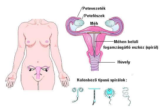 milyen fogamzásgátlás miatt fogysz tűvel távolítsa el a zsírt