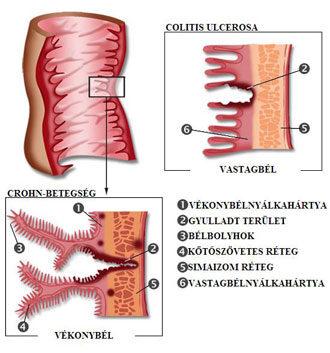 okozhat-e fogyást a crohn-betegség