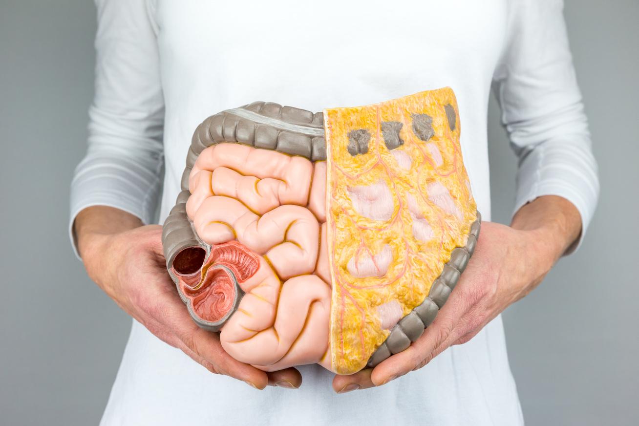 hogyan lehet eltávolítani a zsírt a csövekből fogyás sacramento boldog egészséges vékony