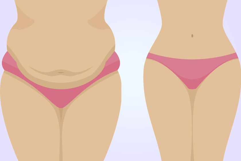 hogyan lehet elégetni az alsó oldali hasi zsírt