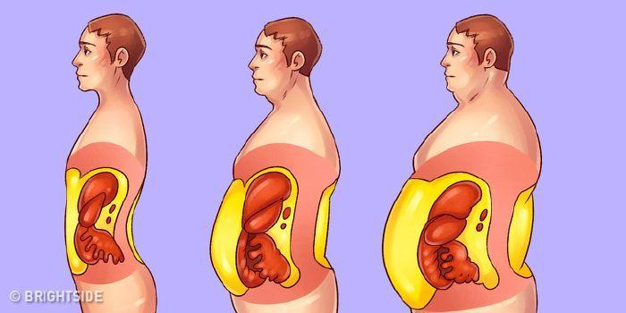 hogyan lehet elveszíteni oldalán kövér nő