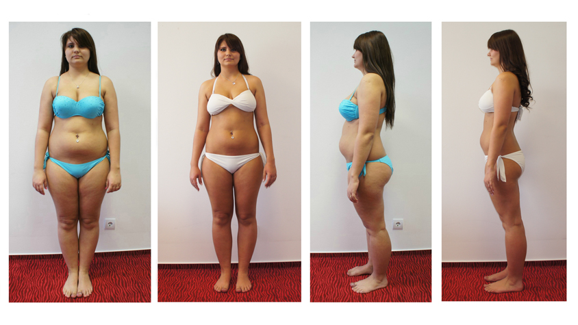 10 napos fogyás, Az egyetlen fogyókúra, amivel 10 nap alatt 10 kilót leadhat: Bécsi diéta!