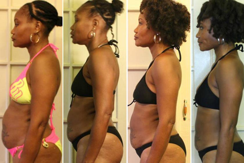mennyi fogyás 3 nap gyors távolítsa el a zsírt és