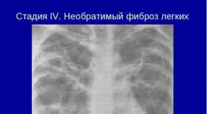 súlycsökkenés tüdőfibrózis 4 kg fogyás 2 hét alatt