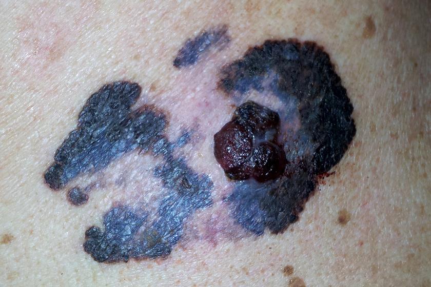 Súlycsökkenés rosszindulatú melanómával. Az elsődleges daganat - jó- és rosszindulatú daganatok